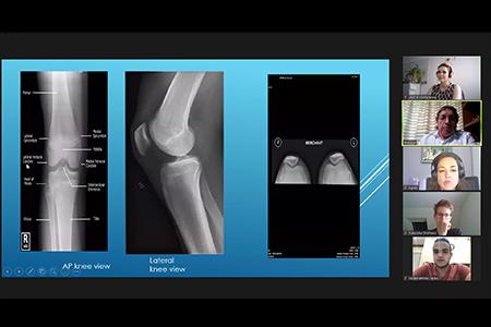 "ReachHigher – Prof. Tiberiu Bataga, MD, PhD hält Vortrag zum Thema ""Bio-Orthopaedics"""